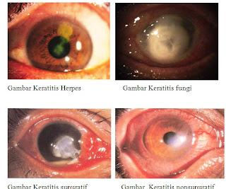 keratitis Penyakit Mata Keratitis