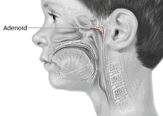 Kelenjar Getah Bening (Adenoid) : Penyebab dan Pengobatan Gejala Penyakit Kelenjar Getah Bening Terinfeksi
