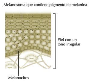 El láser para la desaparición de la pigmentación sobre la persona