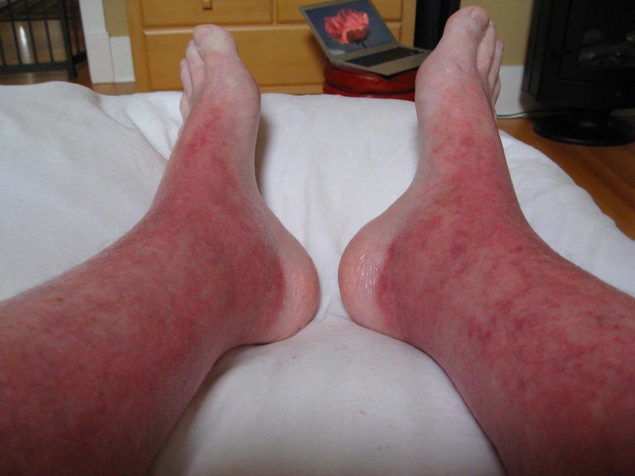 corticosteroid withdrawal rash