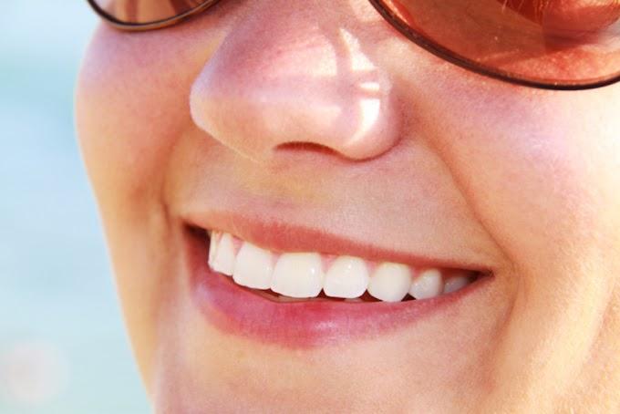 Cómo eliminar manchas dientes con iWhite
