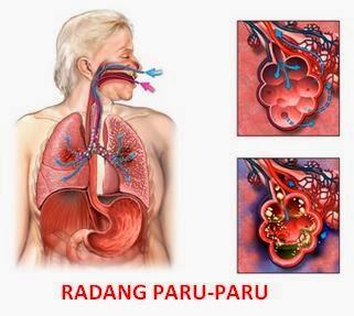Obat Herbal Radang Paru-paru Alami dan Aman