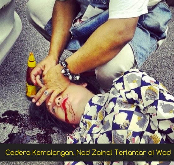 [Gambar] Cedera Kemalangan, Nad Zainal Terlantar di Wad