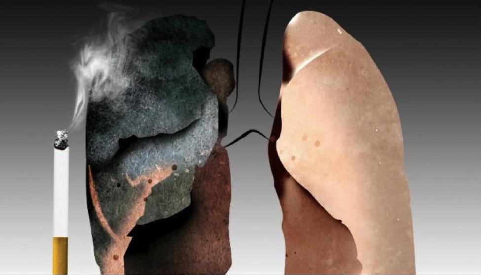 merokok mengakibatkan kanser paru-paru