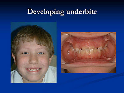 How To Fix An Underbite http://drellisonline.blogspot.com/2011/11/what-is-underbite.html