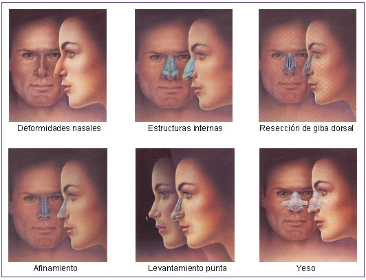 Ciruga Plstica Facial y de Cabeza - ISAPS - Espanol