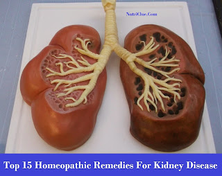 Top 15 Homeopathic Remedies For Kidney Disease