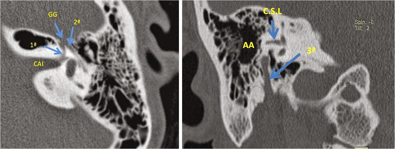 Anatomía y patología de oido | ESPE 202 - 2014