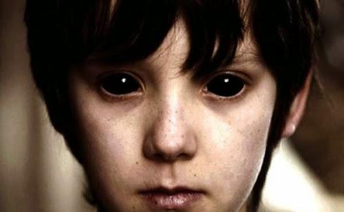 O que são crianças de olhos negros