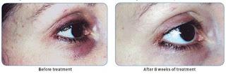 http://saian.net/product/clinical-strength-eye-serum/