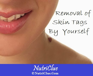 Removal of Skin Tags By Yourself