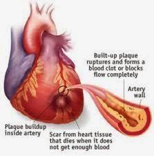 Pengobatan Alternatif Penyakit Jantung Koroner