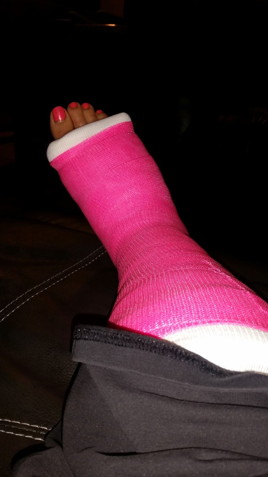 Footnotes: My LisFranc Injury and the Road to Recovery ...