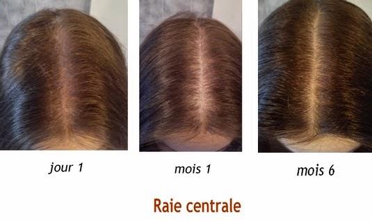 injection chute de cheveux