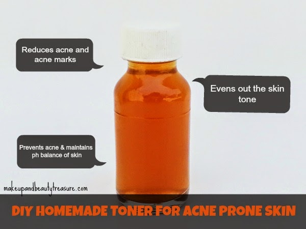 DIY-Homemade-Facial-Toner-for-Acne-Prone-Skin