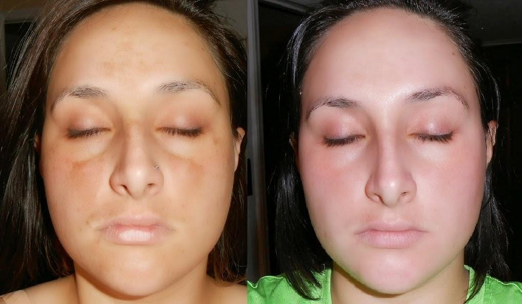 Cara mencerahkan kulit dengan Kojiesan
