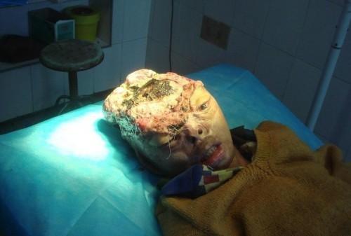 черви в лице человека видео смотреть