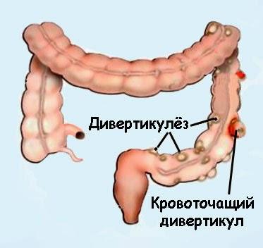 Дивертикулёз сигмовидной кишки