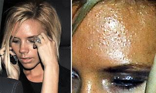 Problemas de acne en el rostro   Tips y ayuda para chicas