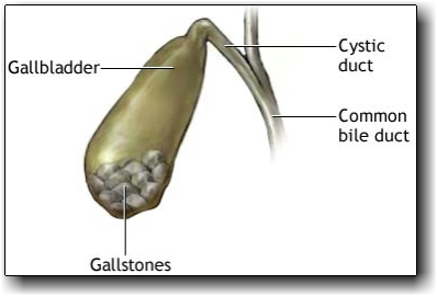how to know if you have gallstones