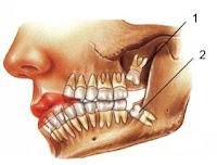 """Em geral, até os dez anos de idade, o ser humano já possui uma dentadura definitiva. Porém, na sua adolescência, surgem os chamados """"dentes do siso"""", quatro molares que, longe de ter alguma utilidade, causam dores e alguns transtornos."""