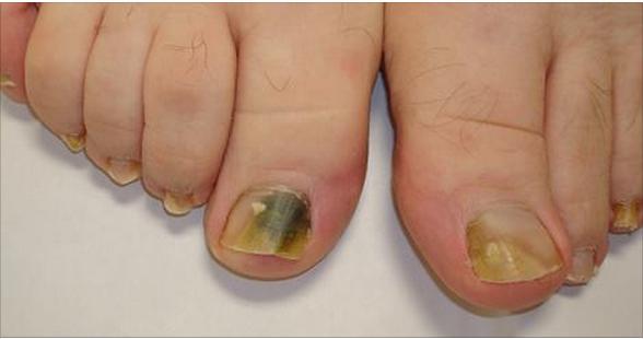 Vartner del hongo de las uñas la instrucción las revocaciones