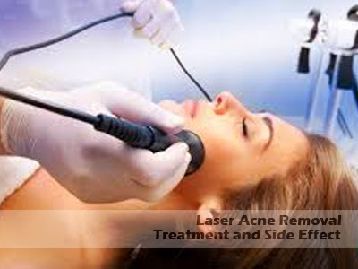 laser acne scar removal treatment side effect