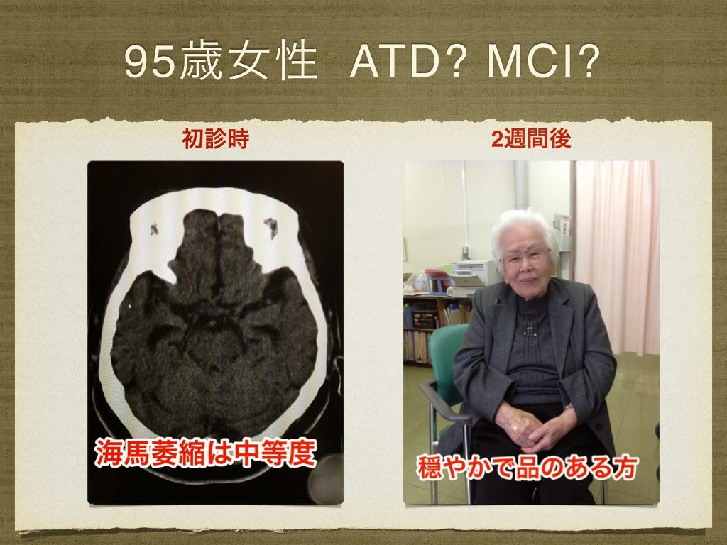 95歳女性 アルツハイマーか軽度認知機能障害か。フェルガードが著効した。