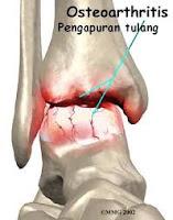 Pengapuran Sendi (Osteoarthritis)
