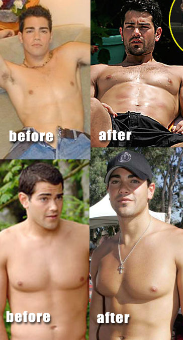 Male plastic surgery before and after celebrity weight