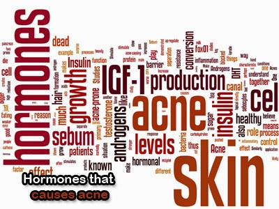 hormones that causes acne