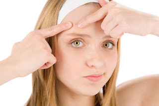 7 Tipe Jerawat yang Muncul di Wajah Beserta Penyebabnya