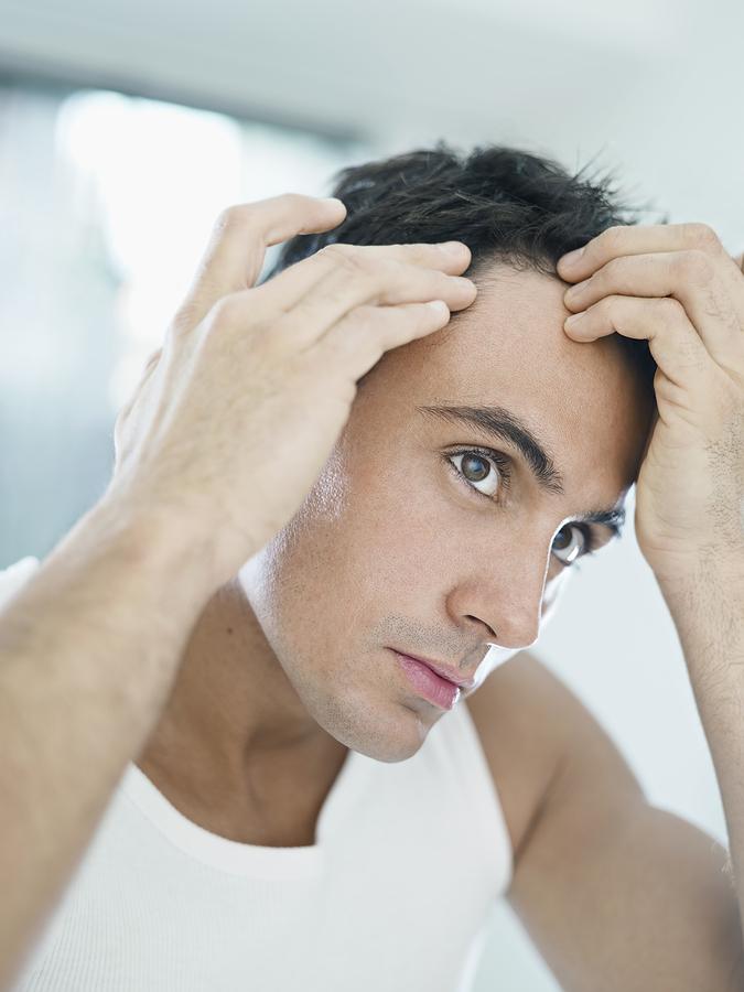 Seasonal hair loss men