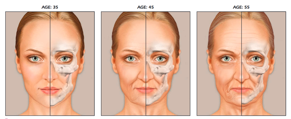 Bone changes in face with age
