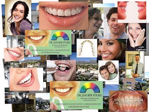 Ortodoncia Arco ideal Collage - Dr. Joachim Stickel - Marbella