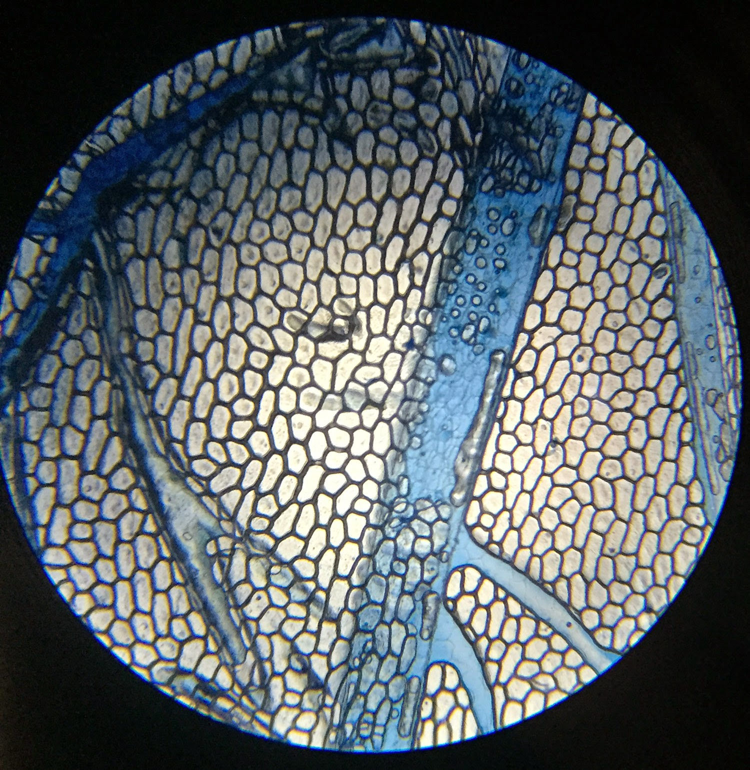 Animal cells under a microscope