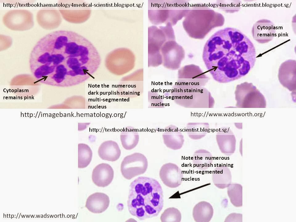 Haematology in a NutShell: Hypersegmented Neutrophils Vacuolization Of Neutrophils