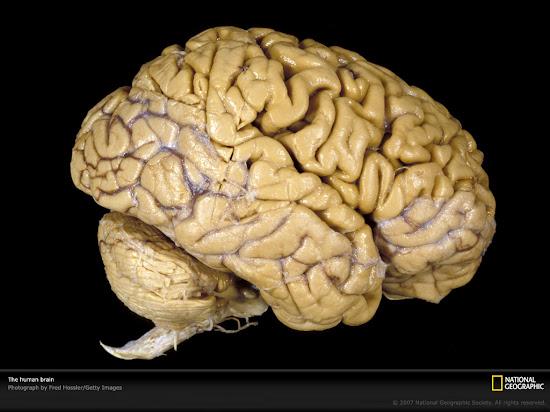 Que significa soñar con cerebro