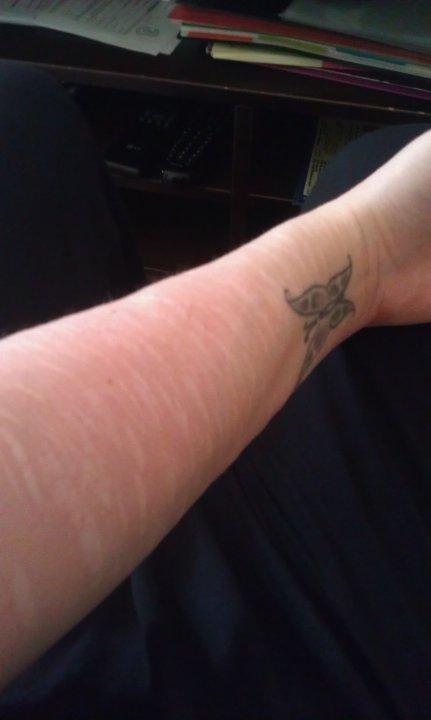 få bort ärr på armarna