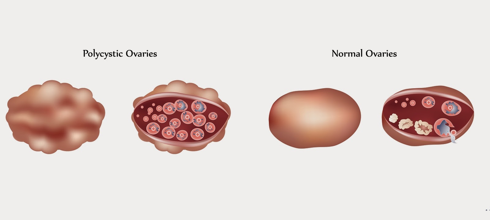 Polycystic Ovary vs Normal Ovary - PCOS