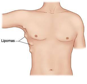 Obat Alami Lipoma Benjolan pada Tubuh lipoma adalah