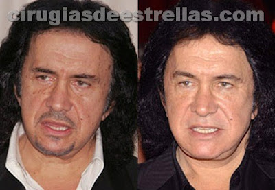 gene simmons antes y despues
