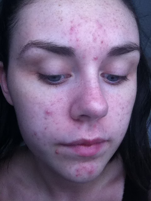 accutane journey photos