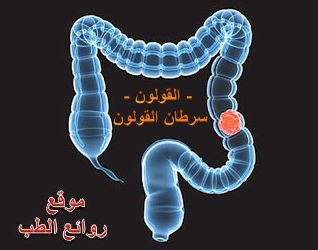 القولون الهضمي واجزاء القولون وما هو سرطان القولون