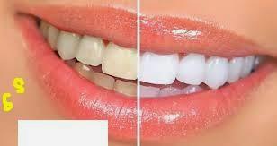 Cara Memutihkan Gigi dengan Alami