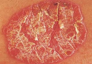 Contoh+keadaan+kulit+psoriasis+yang+jelas+dipermukaan+kulit penyakit psoriasis penyakit kulit psoriasis penyakit kulit