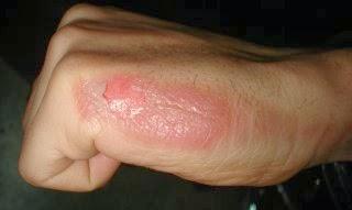 obat luka bakar