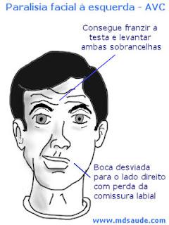 Sintoma AVC
