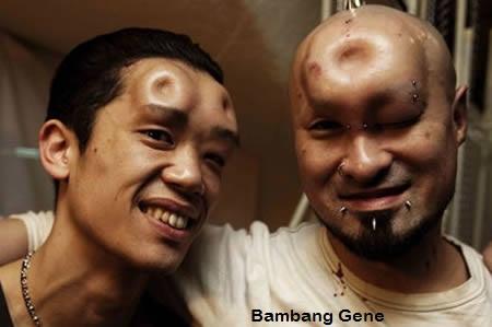 12 Benjolan Tubuh Paling Aneh|bambang-gene.blogspot.com