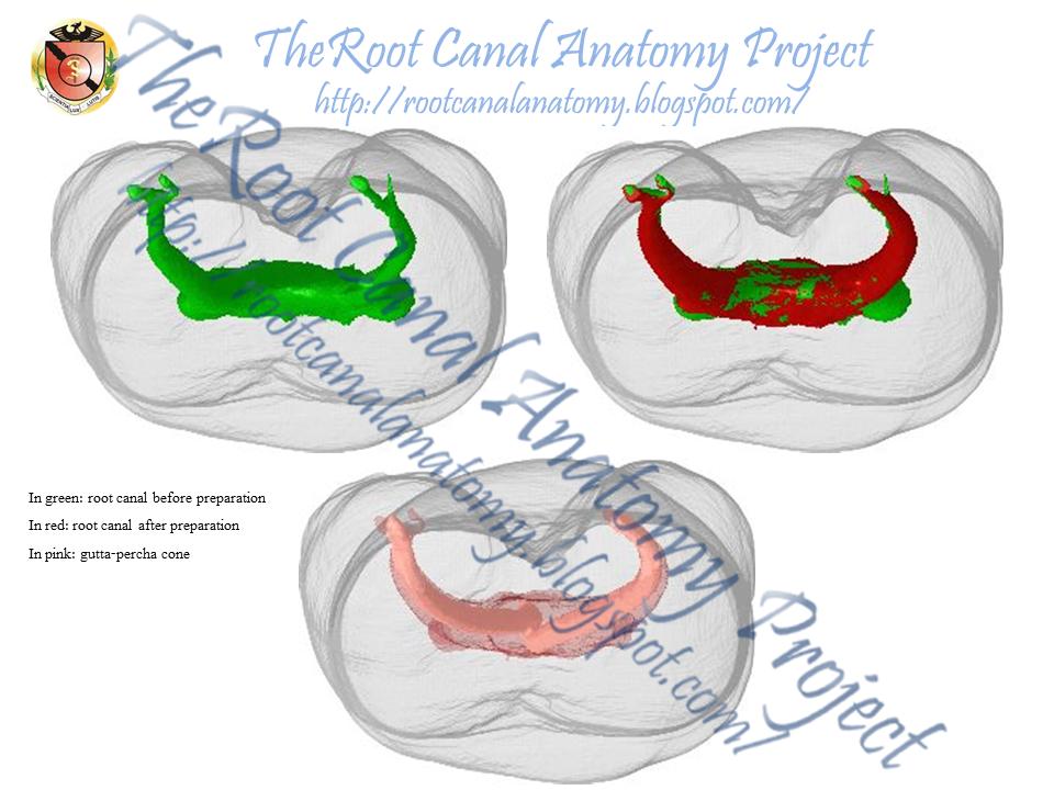 endodontic thesis